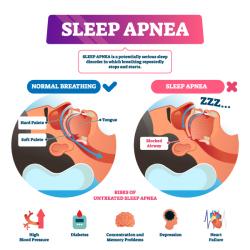 Какво представлява Sleep Apnea